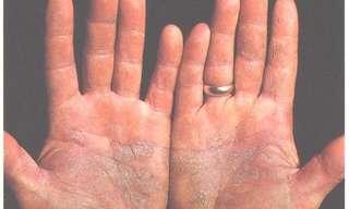 Todo Lo Que Debes Saber Sobre La Psoriasis