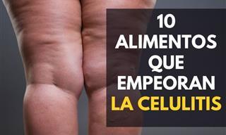 10 Alimentos Que Deberías Evitar Para Reducir La Celulitis