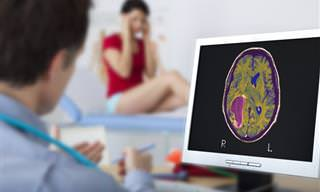 Conocer Los Signos De Un Tumor Cerebral Puede Salvarte La Vida