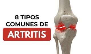 8 Tipos Comunes De Artritis y Sus Diferencias