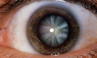 7 Aspectos Que Tu Color de Ojos Revela Sobre Tu Salud