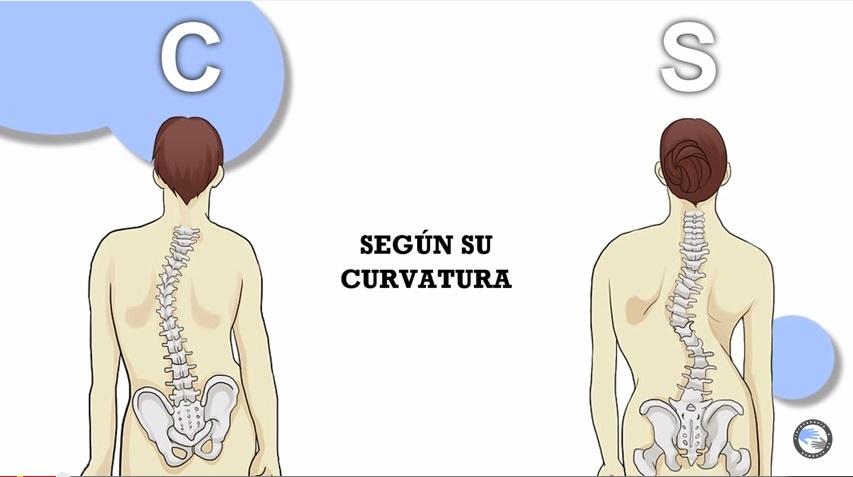Remedios caseros para escoliosis lumbar